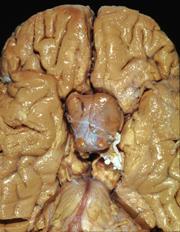 which hormone stimulates the adrenal cortex to produce corticosteroids