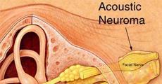 Acoustic Tumor