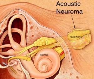 Acoustic_Neuroma1s2w.243192618_std