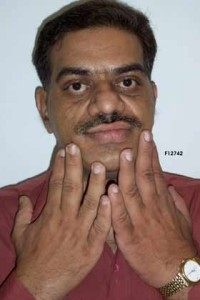 Acromegaly_Hands_Closeup_2.128222103_std