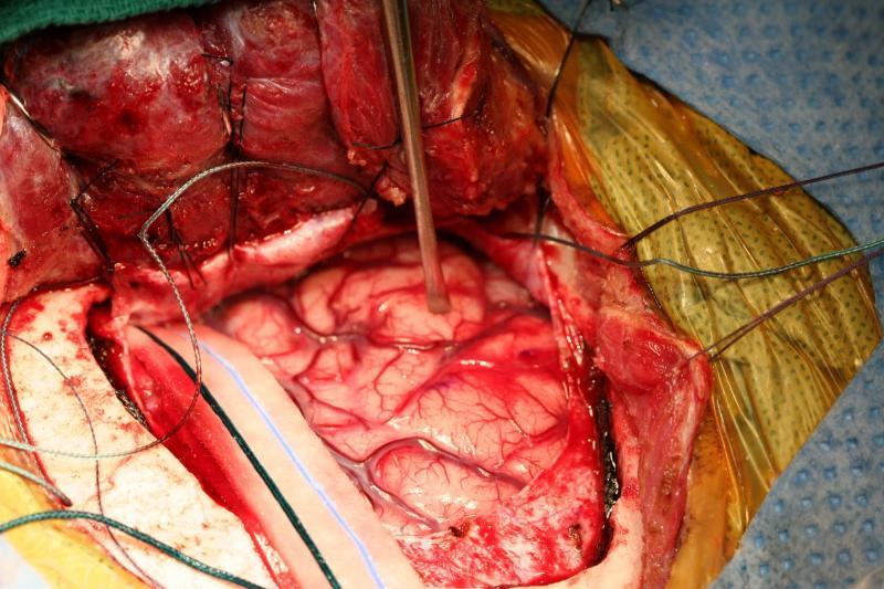 dr arun lnaik mesial temporal sclerosis