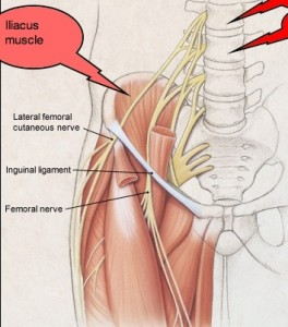 Meralgia-Paresthetica-Lateral-Femoral-Cutaneous-Nerve.194212828_std