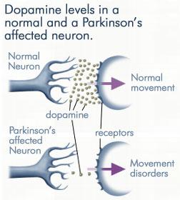 ParkinsonsDopamine1.196185956_std