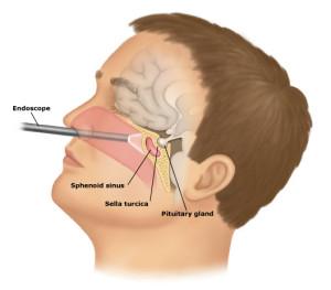 Transsphenoidal_surgery.128223156_std