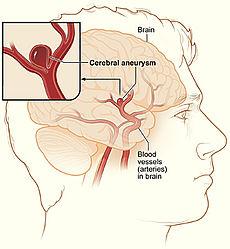 aneurysm.111143655_std (1)