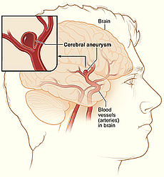 aneurysm.111143655_std