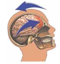 concussion.12900652_std