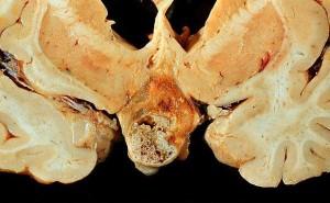 craniopharyngiompath_gross.138180614_std
