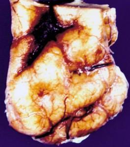 ganglioglioma_patho_specimen.136181435_std