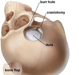 craniotomy_bone_image.337152338_std