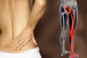 webmd_rm_photo_of_lower_back_pain.114125421_std